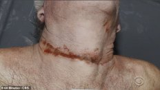 23030618-7855039-Graphic_photographs_from_Epstein_s_autopsy_have_revealed_for_the-a-35_1578278000653
